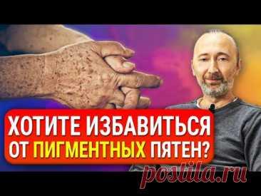 Как избавиться от пигментных ПЯТЕН на лице и теле? Причины появления. Старческие пигментные пятна.