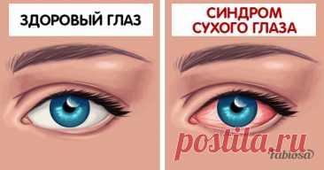 Постоянная сухость глаз — распространённый синдром. Почему ваши глаза сохнут и что с этим делать? Синдром сухого глаза (ССГ), или сухой кератоконъюнктивит, представляет собой глазное заболевание, вызванное пониженной выработкой слёз или их повышенным испарением. Данный недуг является одним из самых распространённых, он поражает 5-6% населения и встречается даже у некоторых животных. Симптомы... Читай дальше на сайте. Жми подробнее ➡