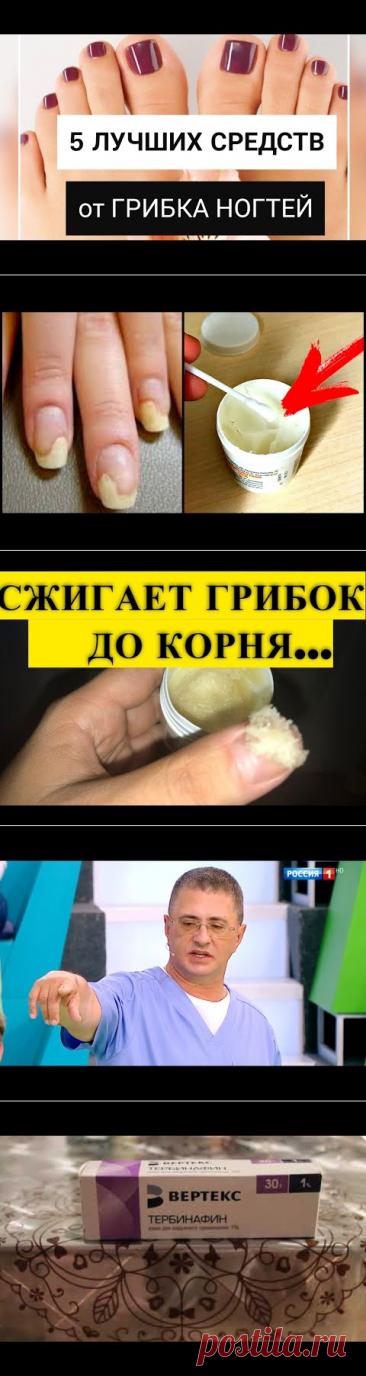 Дерматолог: 5 лучших средств от грибка ногтей - YouTube