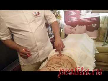 Как делать Висцеральный массаж внутренних органов? (БТММ)
