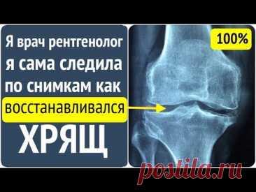 Хрящ восстанавливается и после 60 лет. Отвечает врач рентгенолог!