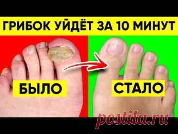Грибок Ногтей Исчезнет За 10 Минут, Если Применять Эти Способы! Лечение Грибка Ногтей ПРОСТО!