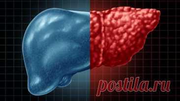 Обнаружены незаметные признаки жировой болезни печени