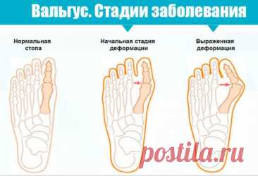 Почему происходит вальгусная деформация стопы / Будьте здоровы