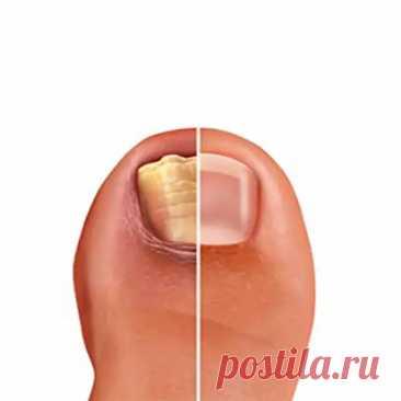 Как быстро избавиться от грибка ногтей - Народная медицина - медиаплатформа МирТесен