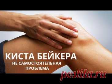 Киста Бейкера - избавляемся от неё и предупреждаем разрушение сустава.