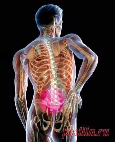 Защемление седалищного нерва: 2 простых упражнения, которые помогут