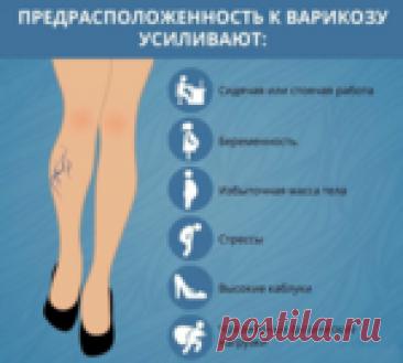 Советы флеболога при варикозе