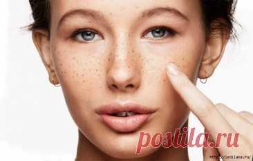 Как стереть коричневые пятна с вашей кожи?