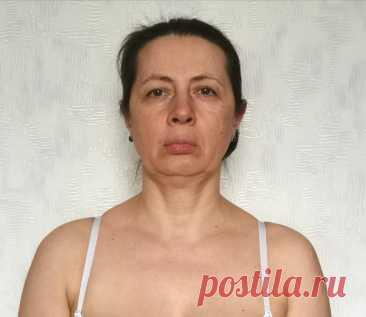 Заломы на лице - как избавиться, причины появления, профилактика