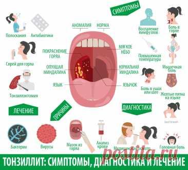Как вылечить ангину взрослому пациенту? - статьи от компании Еламед