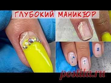 Дырка в ногте 😱 / Последствия глубокого маникюра