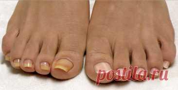 Как избавиться от грибка ногтей на ногах Грибок ногтей является очень распространенным заболеванием, как у мужчин, так и у женщин. Многие не спешат с таким заболеванием обращаться к врачу, да и не