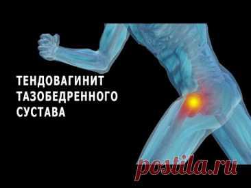 Что нужно знать о тендовагините тазобедренного сустава