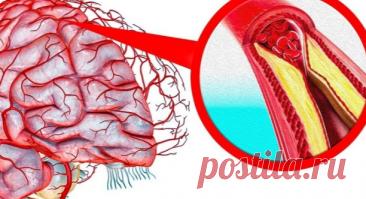 Las recetas para la depuración de los vasos del cerebro