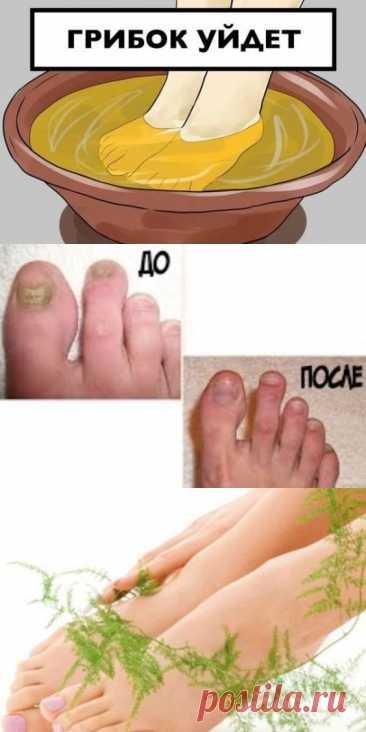 Чем вывести грибок ногтей на ногах в домашних условиях осенние поделки