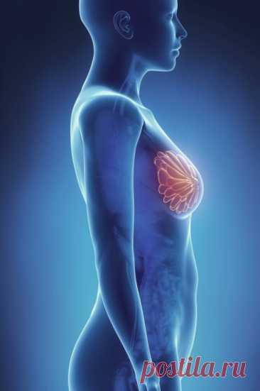 Это НЕ предрак: 6 мифов в диагностике заболеваний молочных желез