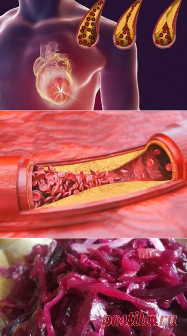 Употребляйте регулярно эти 10 продуктов, и ваши артерии всегда будут оставаться чистыми!