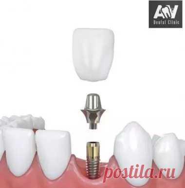 Имплантация зубов в Самаре от 30000 рублей, AV Dental Clinic