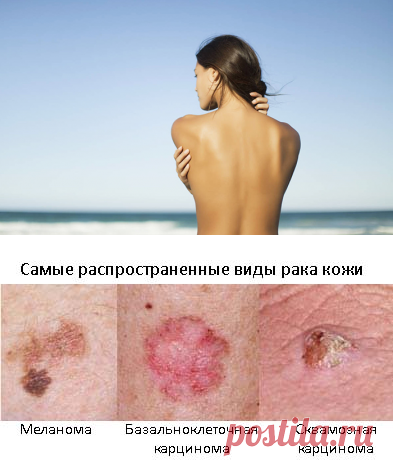 Такие жертвы красоте не нужны: 5 причин отказаться от загара топлес
