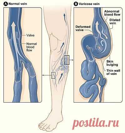 Как заставить «спрятаться» вены на ногах | Naget.Ru