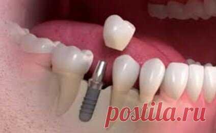 Чем импланты лучше мостовидных и съемных протезов, или Еще раз о плюсах зубной имплантации   Стоматология ROOTT   Яндекс Дзен