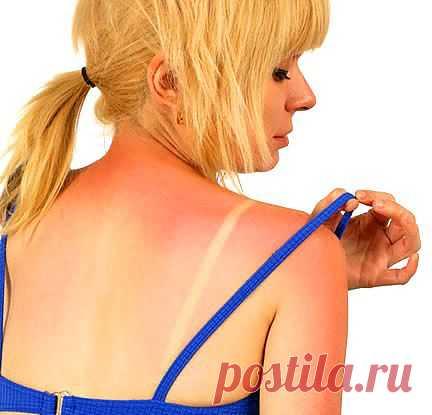 Срочная помощь при солнечных ожогах.