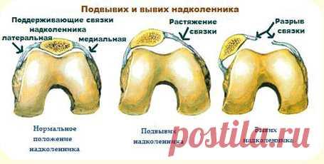 Если ноют колени и тазобедренный сустав: диета при болезни, продукты для суставов