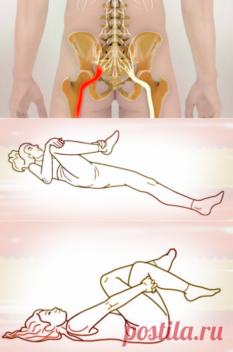 How to unblock a sciatic nerve: 2 easy ways to kill pain.