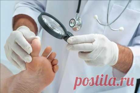 Грибок на ногах ногтей, фото и лечение заболевания  Как определить грибок ногтей? Лечение грибковых ногтей может быть затруднено, и может занять до 18 месяцев. Рецидив и реинфекция распространены (частота повторного инфицирования 40% -70%). Попытка удалить или изменить факторы.