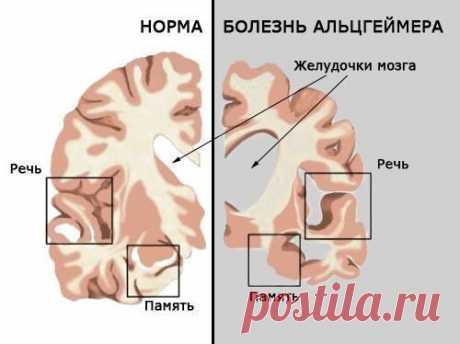 Болезнь альцгеймера, витамин В12 и кишечная микрофлора
