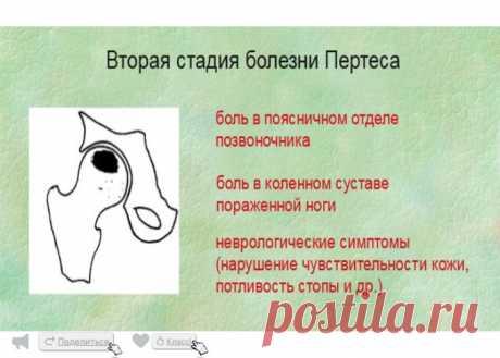 Асептический некроз головки бедренной кости (инфаркт тазобедренного сустава)