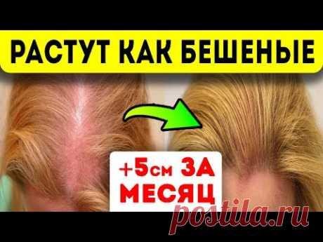 ПРЕДУПРЕЖДАЕМ СРАЗУ: на лицо и руки не наносить! Волосы растут как бешеные — всего одна капля…