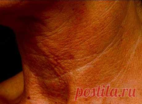 Минутное упражнение для подтяжки обвисшей и дряблой кожи на теле | Рецепты здоровья | Яндекс Дзен