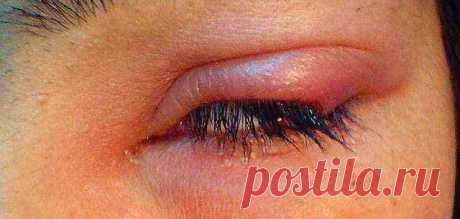 Ячмень на глазу: виды, причины, лечение. Ячмень на глазу — воспалительный процесс на кожных складках глаз, сопровождающийся выделением гноя из волосяного мешочка ресниц или сальных желез. Заболевание вызывает неприятные ощущения внутри века, зуд, образование гнойных узелков, припухлость и покраснение. Часто причины кроются в простудных заболеваниях и стафилококковой инфекции.