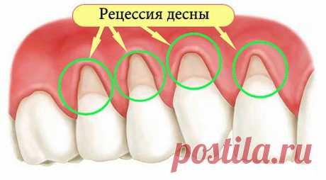 Как устранить оголение шейки зуба и не допустить потерю зубов? Помогут 5 эффективных рецептов! - Полезные советы красоты