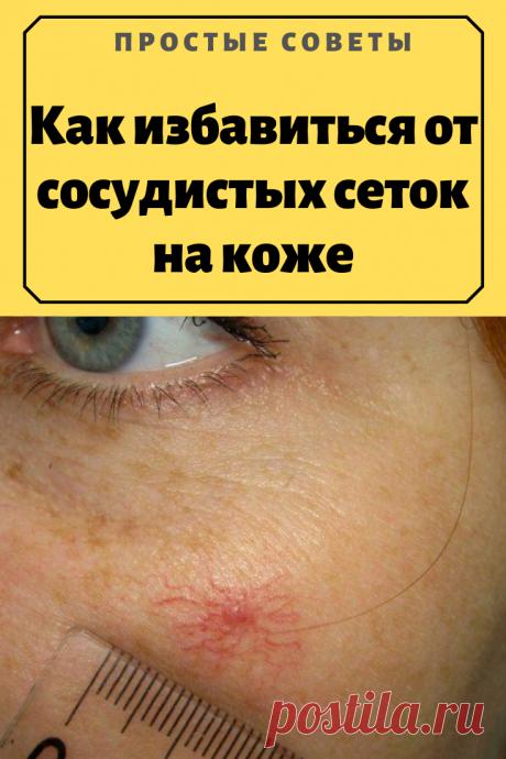 Как избавиться от сосудистых сеток на коже – Простые советы
