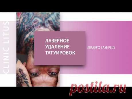 Лазерное удаление татуировок и татуажа ▷Лазер X-LASE Plus Q-Switch ▷ Врач Гармаш Сергей - YouTube