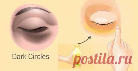 Как быстро устранить темные круги под глазами. Вы будете удивлены! Темное обесцвечивание кожи под глазами в основном называют темными кругами.Некоторые из ...