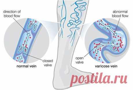 Как заставить спрятаться вены на ногах: 6 рецептов от варикоза