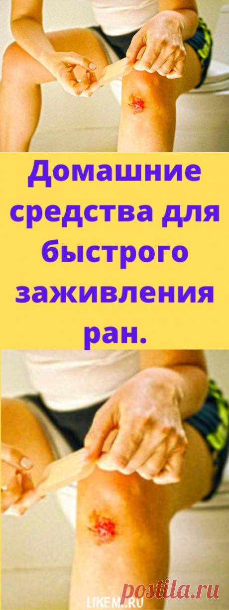 Домашние средства для быстрого заживления ран. - likemi.ru