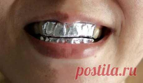 Она покрыла зубы пищевой фольгой … Результат впечатляет! ОТБЕЛИВАНИЕ ЗУБОВ ДОМА.