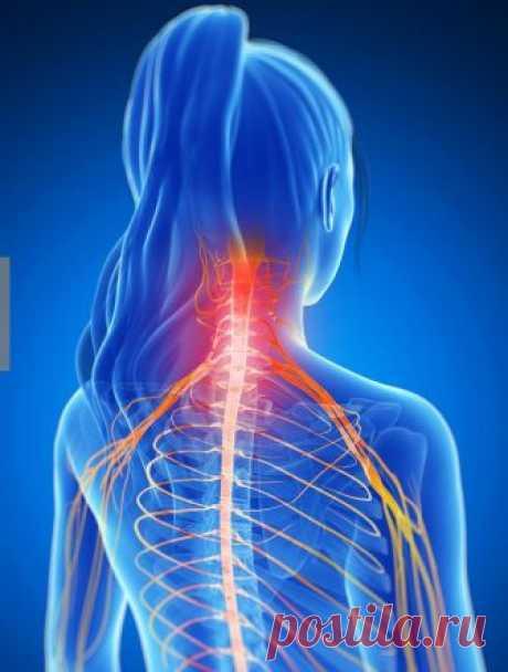 Защемление шейного нерва: симптомы и лечение