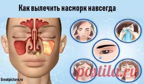 Как вылечить насморк   Как вылечить насморк навсегда:  Симптомы простуды преследуют нас практически в любой сезон. Самый неприятный и назойливый из них – насморк.Медицина в настоящее время предлагает массу эффективных сре…