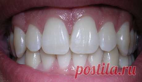 Зубы человека — Википедия