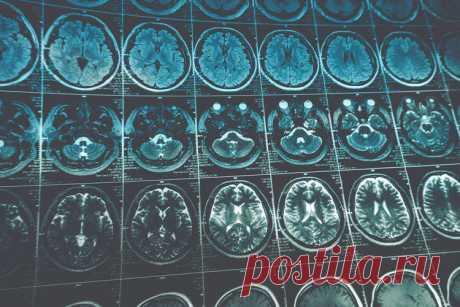 9 мифов об опухолях мозга, в которые не нужно верить