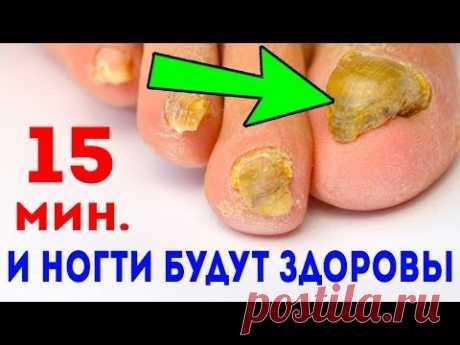 15 мин. ГРИБОК НОГТЕЙ - как ветром сдует. Лечение грибка ногтей
