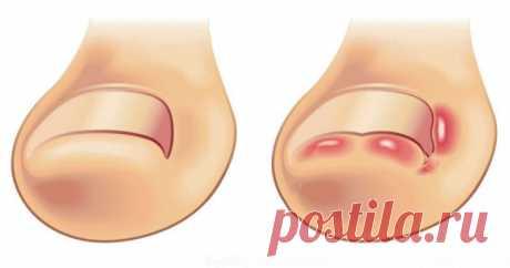 Лечение вросшего ногтя на ноге: 11 способов избавиться от вросшего ногтя