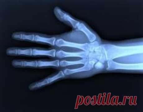 Сегодня 08 ноября в 1895 году Физик Вильгельм Рентген открыл «рентгеновские лучи»