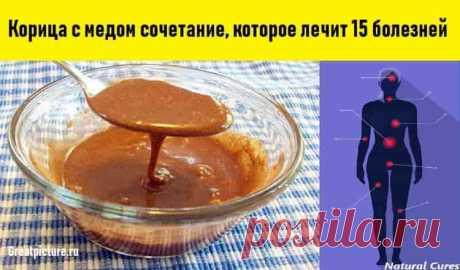 Корица с медом   Корица с медом сочетание, которое лечит 15 болезней. Эффект не могут объяснить даже врачи.Чудеса, да и только!Смесь корицы и меда — уникальное средство от многих болезней. Эти два компонента идеальн…